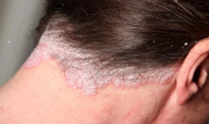 псориаз симптомы и лечение