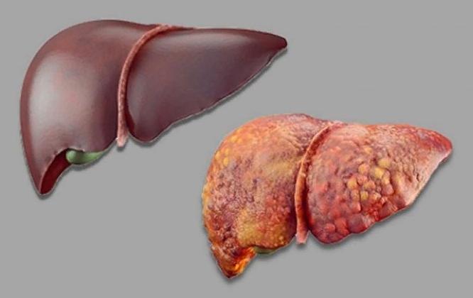 Гепатит А способы заражения
