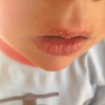 У ребенка обветрились губы причины