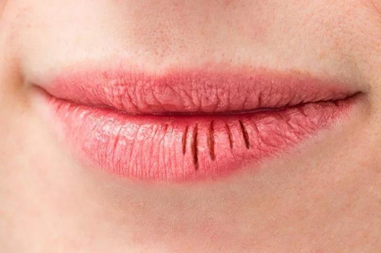 Потрескались губы причины и способы лечения