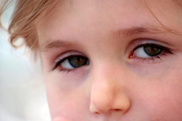Синяки под глазами у ребенка причины