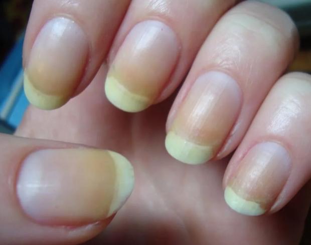 Как отбелить пожелтевшие ногти