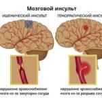 Микроинсульт — симптомы, причины и осложнения