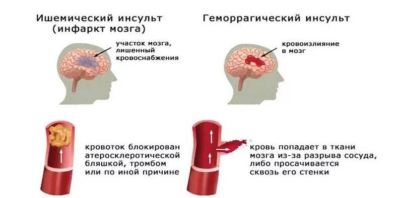 Микроинсульт - симптомы, причины и осложнения
