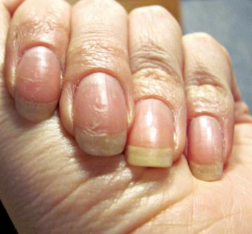 Восстановить ногти после гель лака